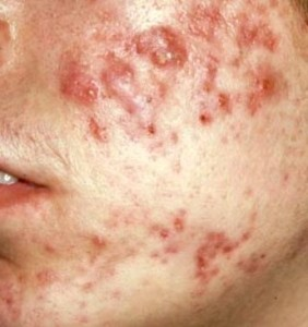 acne cysts
