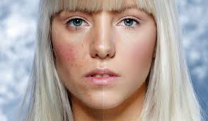 blonde woman with acne on one side of face