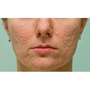 woman with acne scarring on face