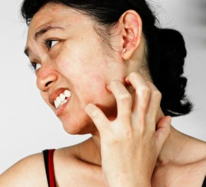 woman with itchy face