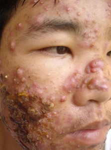 man with acne fulminans