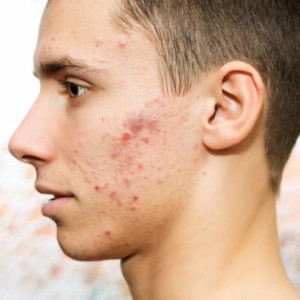 man with hormonal acne